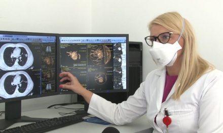 Medicii din Timișoara au implementat un soft de post procesare pentru masurarea volumetrica a unui nodul pulmonar